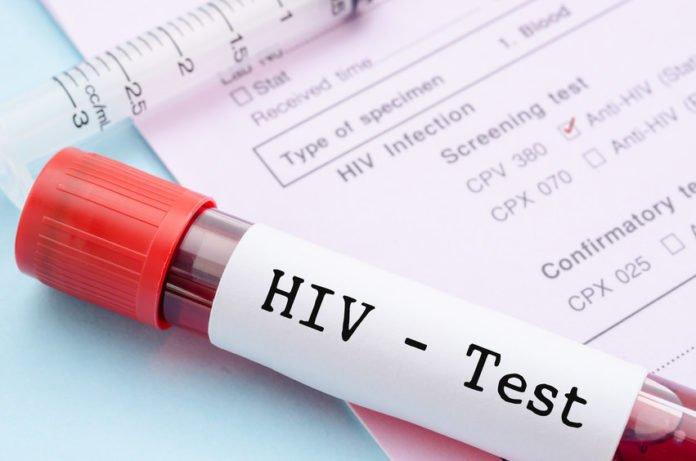 diagnosticati cu HIV