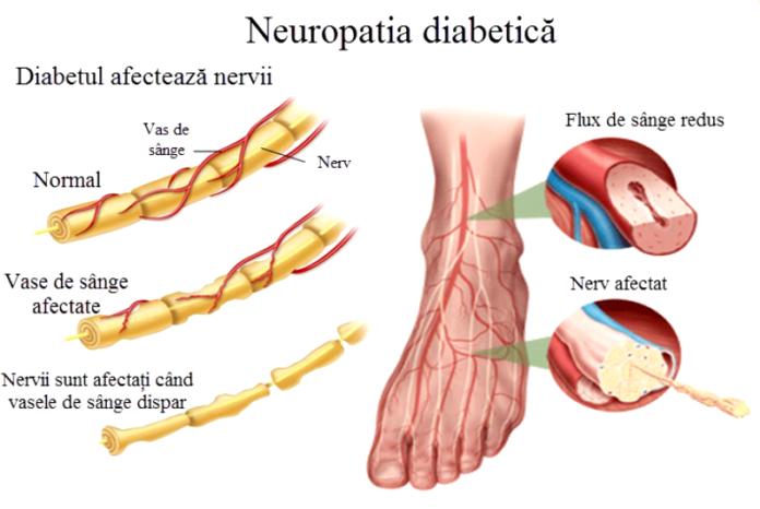 screeningul pentru neuropatie diabetica