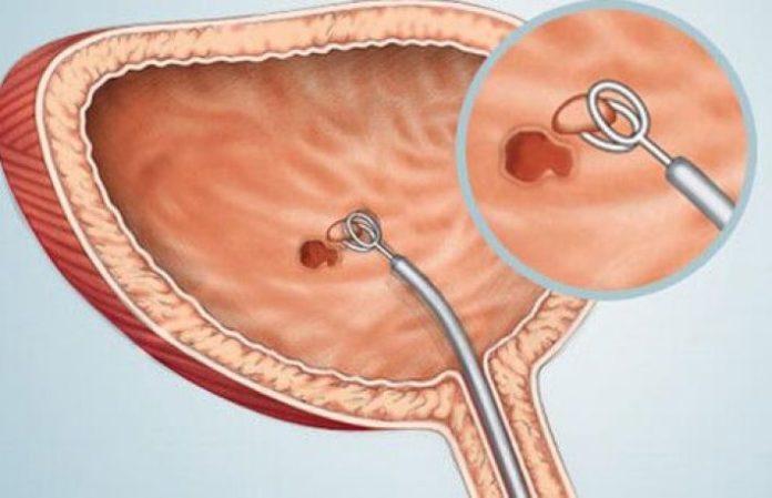 cancer vezica