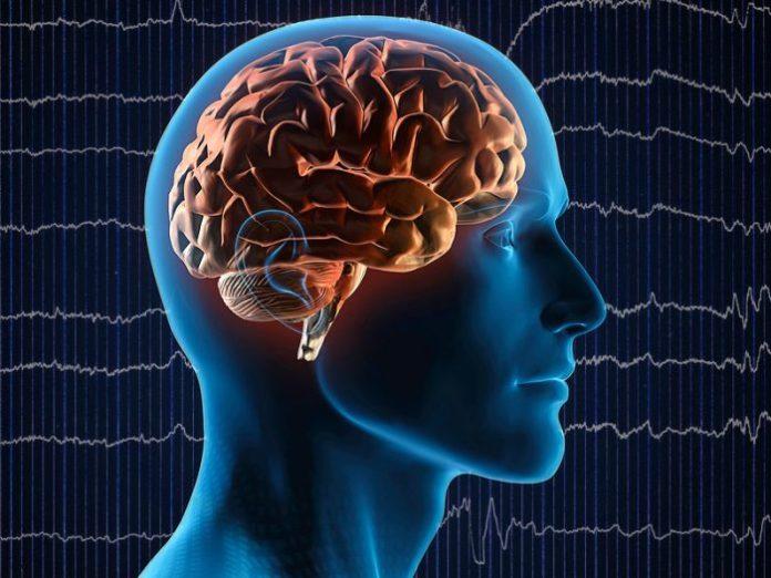 sufera de epilepsie