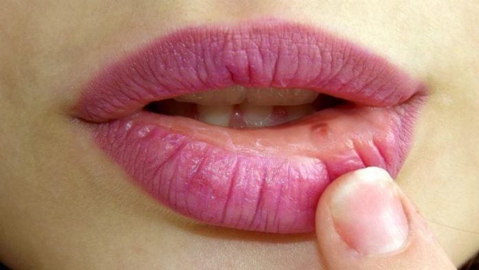 Cancerul buzei