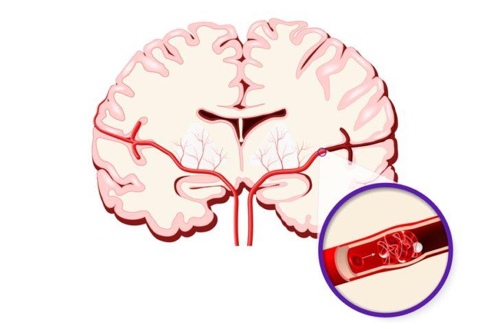 accidentul vascular cerebral depresie severa