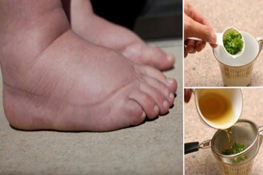 Picioarele umflate