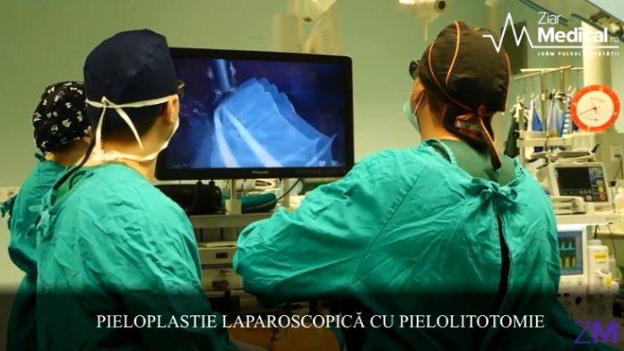 Pieloplastia laparoscopică cu pielolitotomie Bogdan Petruț