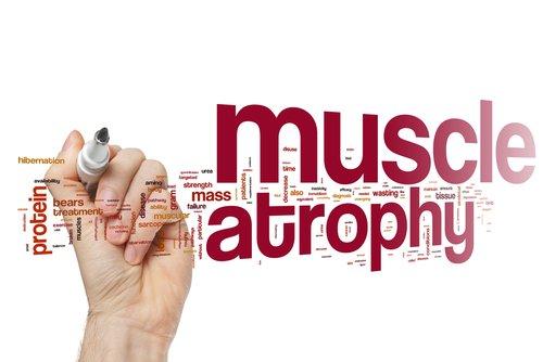 atrofie musculara