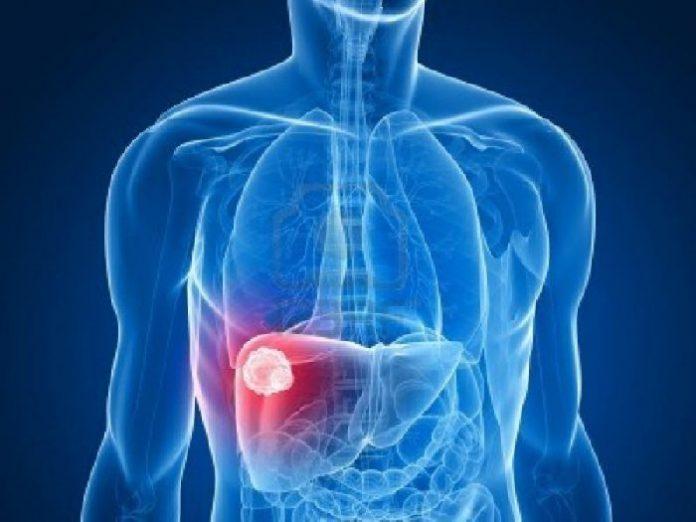 tratamentul hepatitei