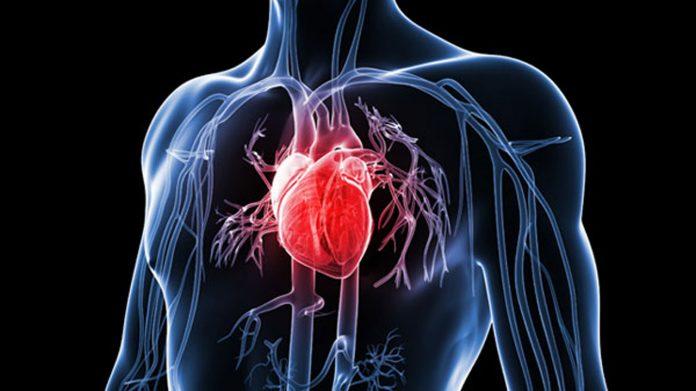 bolile cardiovasculare ucid