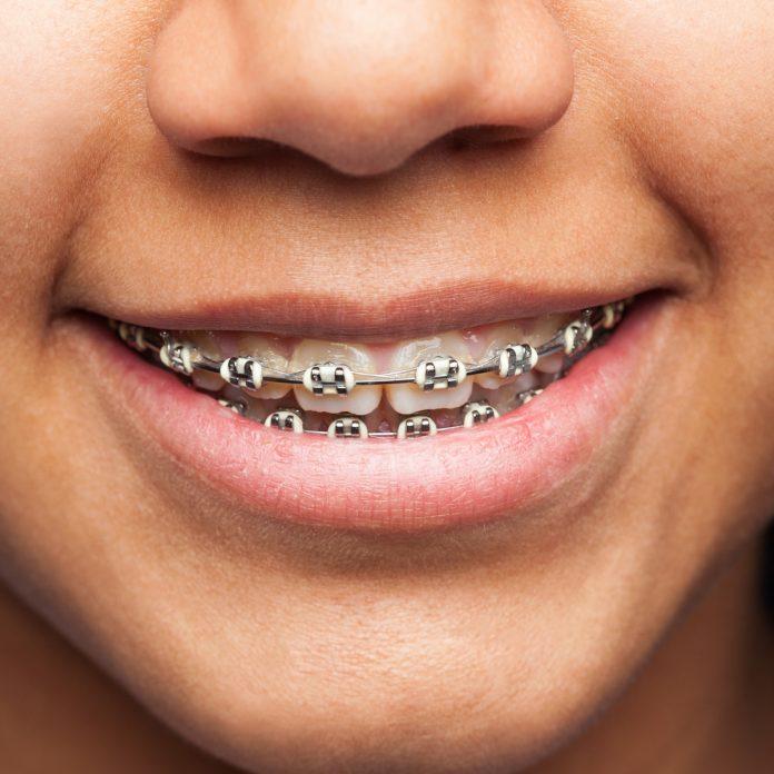aparate ortodontice