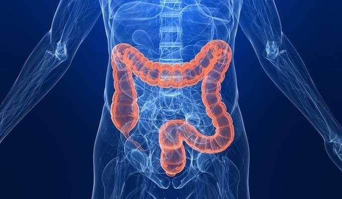 pacienții operati pentru stoma