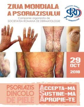psoriazis