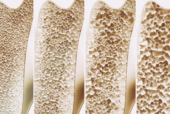 sfatul medicului osteoporoza