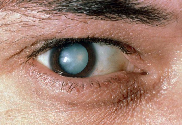 afectat de cataracta
