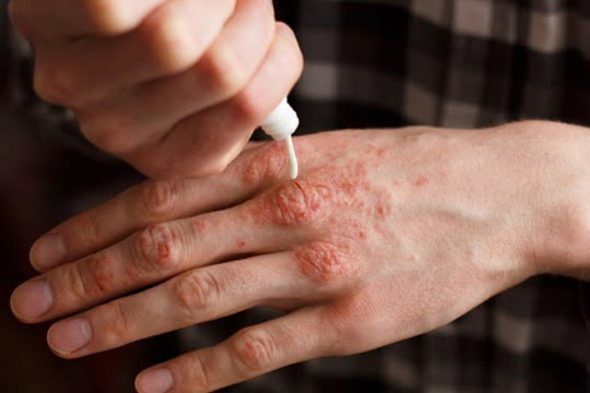 psoriazis diagnostic