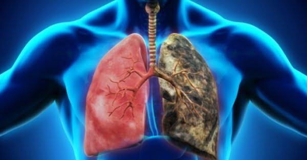 cancer pulmonar numar de decese