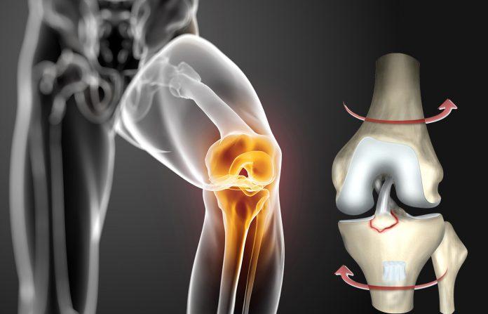 leziunea de ligamente încrucișat