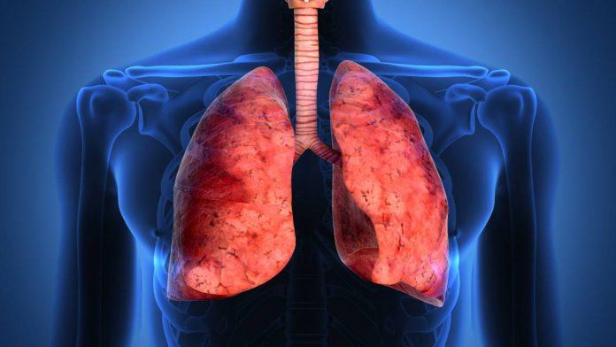 medicament impotriva cancerului pulmonar