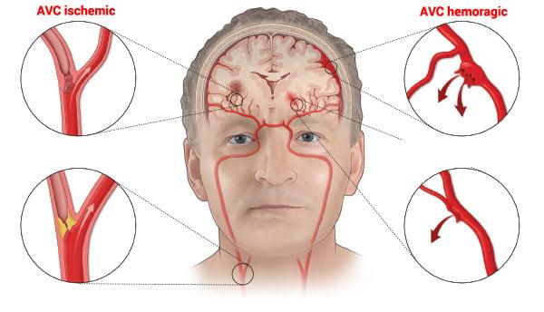 Accident vascular cerebral (AVC)