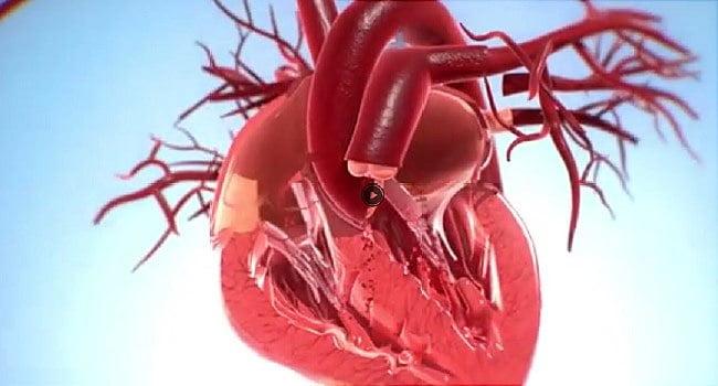 valve aortice viabile