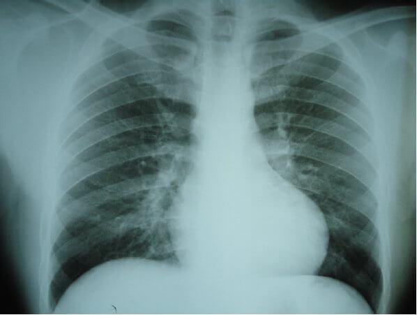 Hipertensiunea Arterială Pulmonară