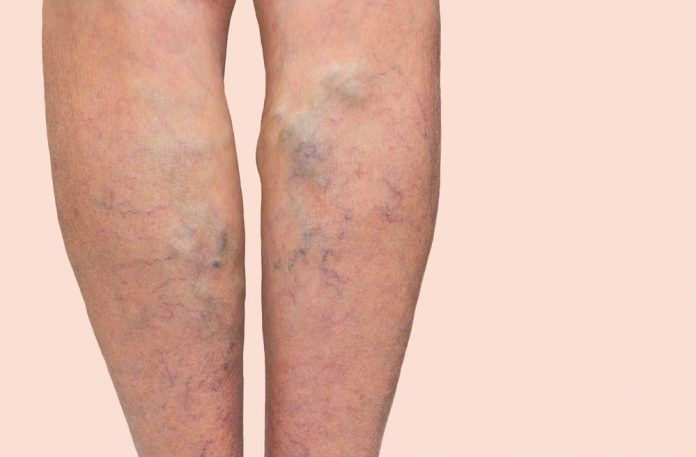Boala varicoasă
