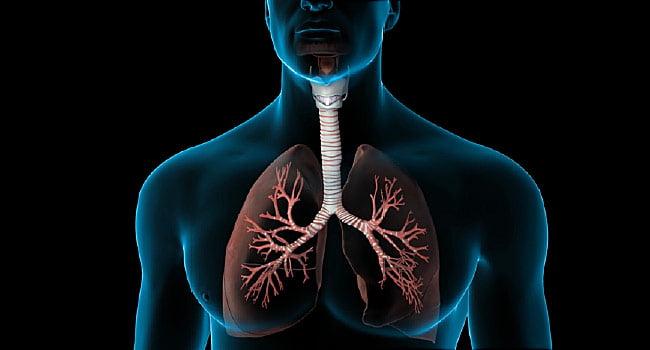 Ce este embolia pulmonară