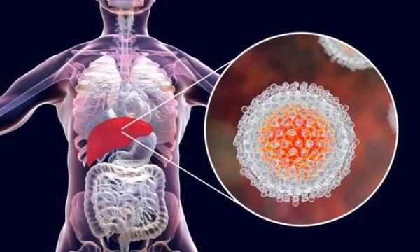 ce este hepatita