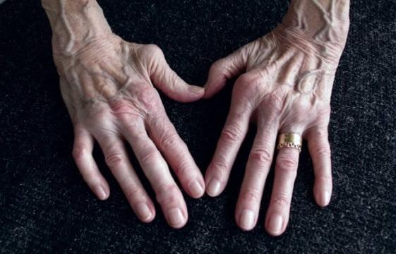 ce este artrita