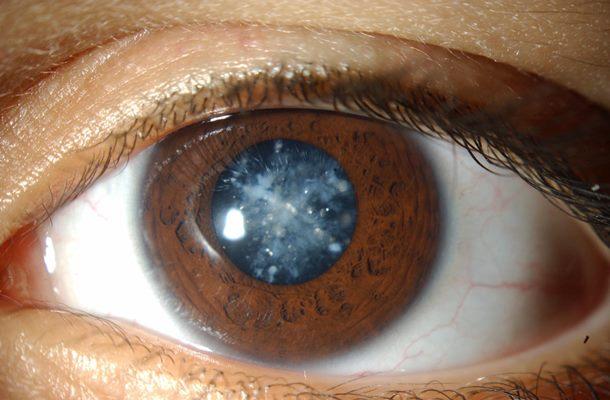 Ce este cataracta? Tipuri de cataractă, simptome, tratament