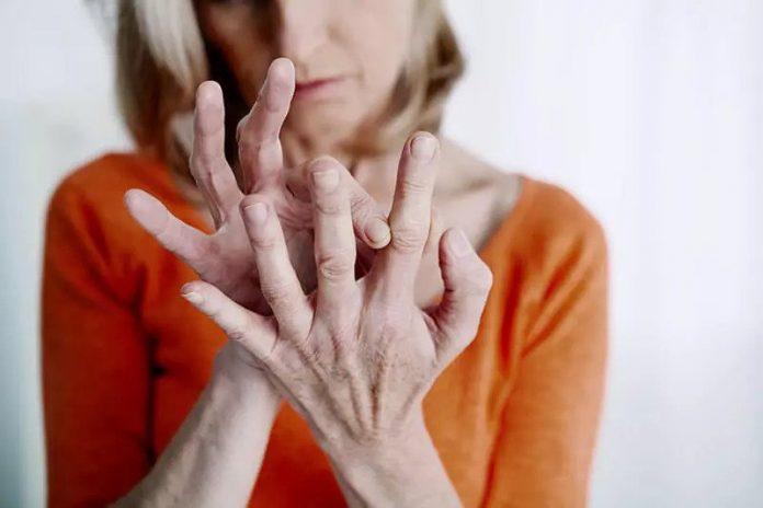 Poliartrita reumatoidă tratament