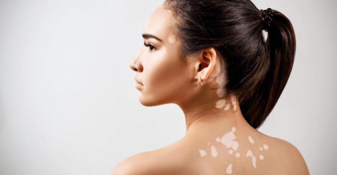 Vitiligo - Cum se manifestă, complicații, factori de risc, tratament