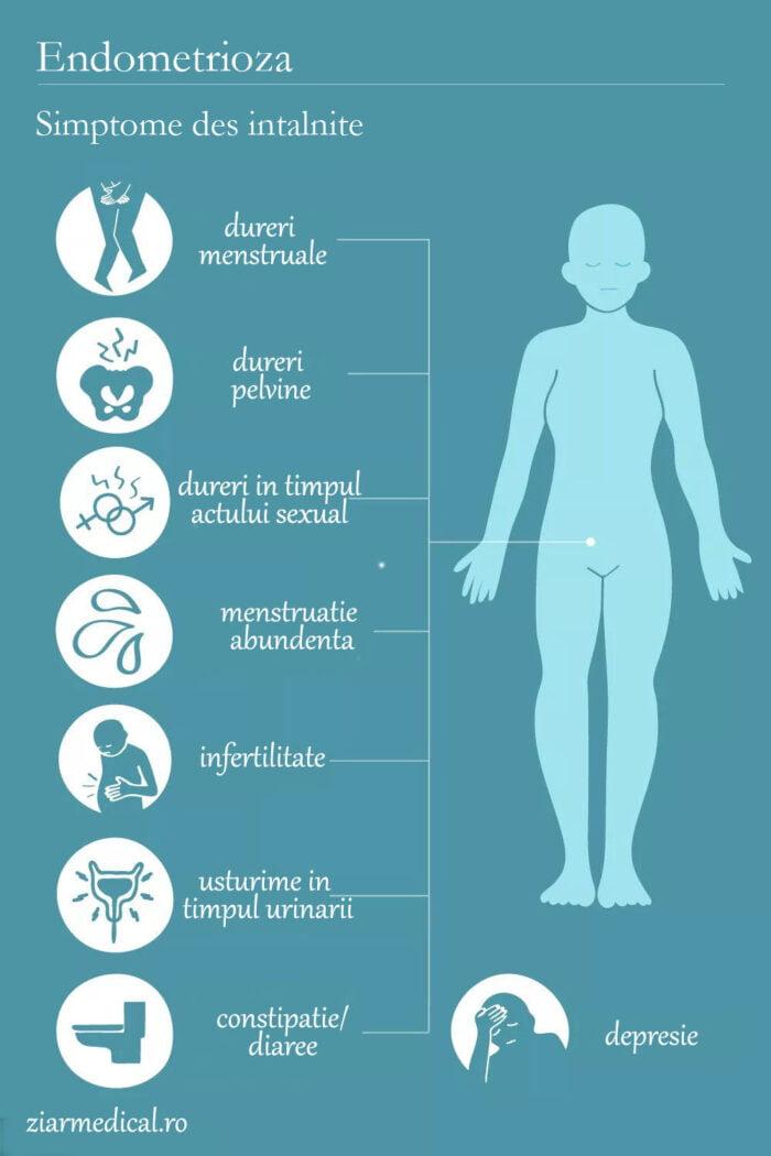 endometrioza simptome grafic